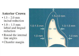 Lava Anterior Crown